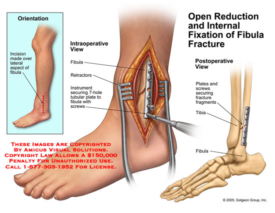 Medical diagrams and resources regarding Intraoperative view of instrument securing tubular plate to fibula, and postoperative view..