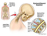 Illustration of amicus,surgery,epidural,steroid,injection,arms,pain,C4-5,needle,cervical,section,radiating