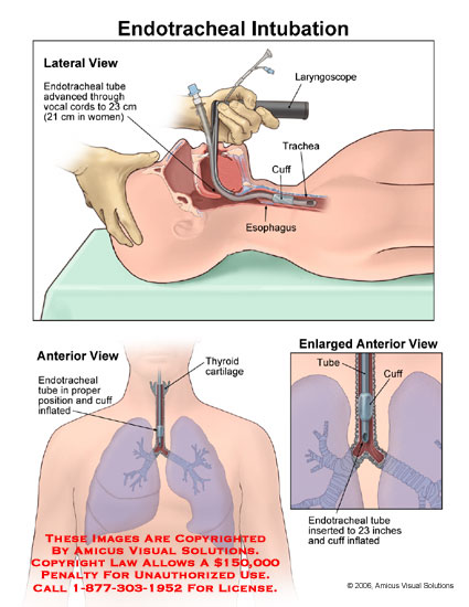 Placement of laryngoscope and cuff inflated in trachea.