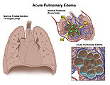 Sectioned lungs with gas exchange and edema in alveoli.