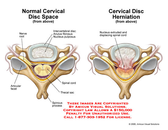 Normal disc space compared to central herniation.