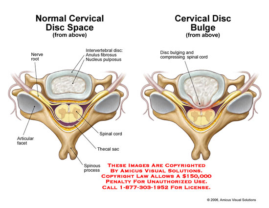 Medical diagrams and resources regarding Normal disc space compared to central disc bulge..