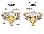 Illustration of amicus,injury,normal,cervical,disc,space,bulge,central,compression,spinal,thecal,anulus,nucleus,protrusion