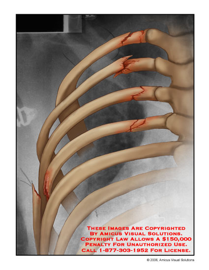 Medical diagrams and resources regarding Fractured left ribs illustrated on film..