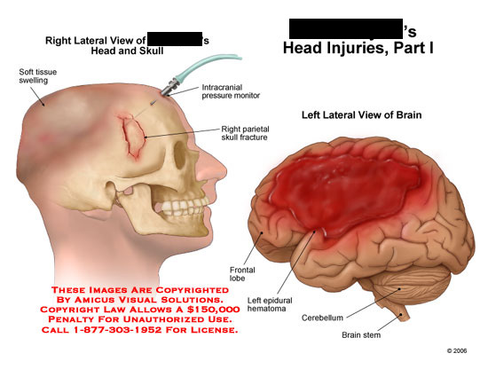 Right view of skull fracture and left brain with hematoma.
