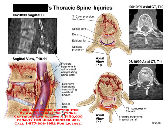 Medical diagrams and resources regarding Sagittal and axial sections of fractured T10-11..