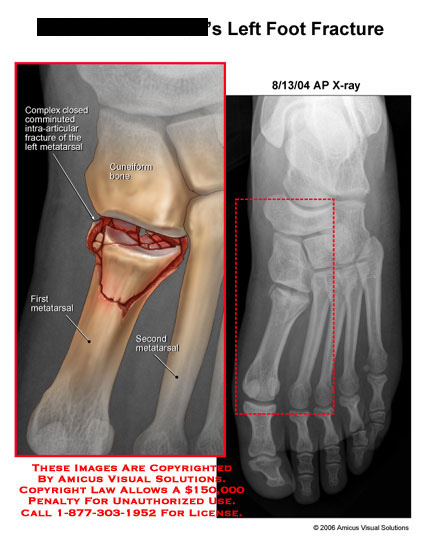 amicus,injury,left,foot,fracture,intra-articular,articular,comminuted,first,metatarsal,x-ray,xray