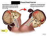 Hyperextension and hyperflexion of head and brain impacts.