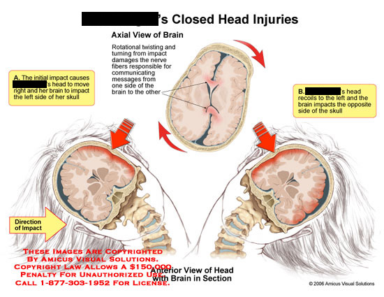 amicus,injury,head,injuries,axial,coronal,brain,impact,rotational,twisting,section,right,left,shearing