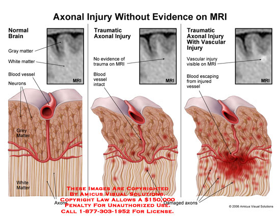 Illustrates injury that is not visible on MRI.