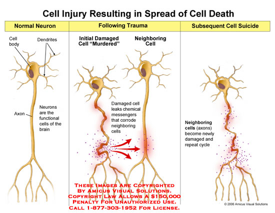 amicus,injury,cell,neuron,death,neuro,toxin,damage,chemical,cycle,axons,traumatic,axonal,apoptosis