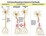Shows damaged neuron leaking neuro toxins to neighboring neurons.