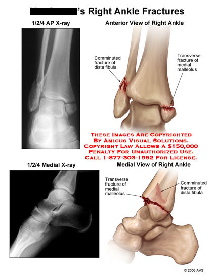 amicus,radiology,injury,bimalleolar,right,ankle,fracture,anterior,medial,X-ray,Xray,comminuted,malleolus