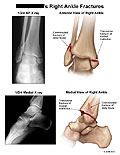Anterior and medial views of bimalleolar fractures.