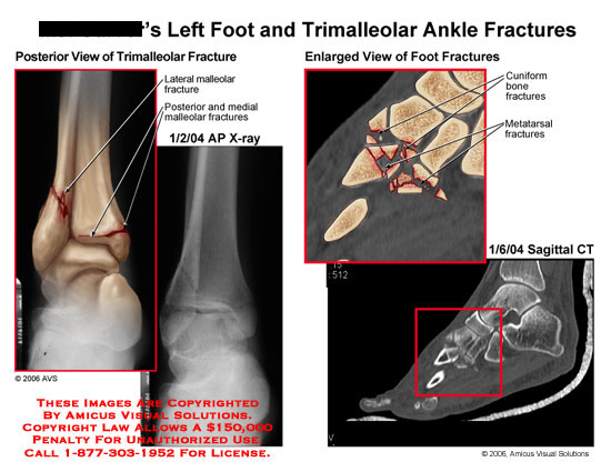 Posterior view of ankle fracture, and lateral view of foot fractures.