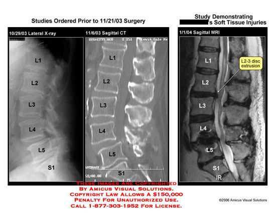 Medical diagrams and resources regarding Sagittal X-ray vs. CT vs. MRI of lumbar disc injury..