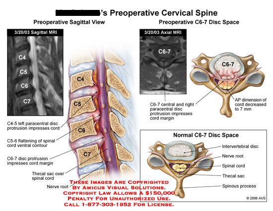 amicus,injury,cervical,spine,MRI,sagittal,axial,disc,herniation,herniated,protrusion,cord,compression,paracentral,C6-7