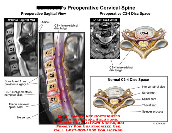 Sagittal and axial MRI with illustrations of C3 thru C7.