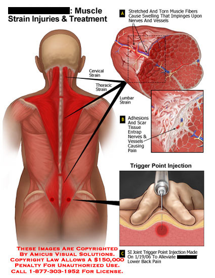 Medical diagrams and resources regarding Torn muscle fibers and adhesions along back, with trigger point injection..
