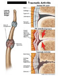 PIP joint during injury, sprained, and with arthritis.