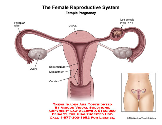 Medical diagrams and resources regarding Female reproductive system with embryo in left fallopian tube..