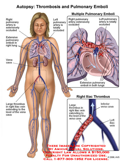 amicus,medical,deep,vein,thrombosis,pulmonary,emboli,embolus,iliac,occlusion,occluded,lung,thrombus