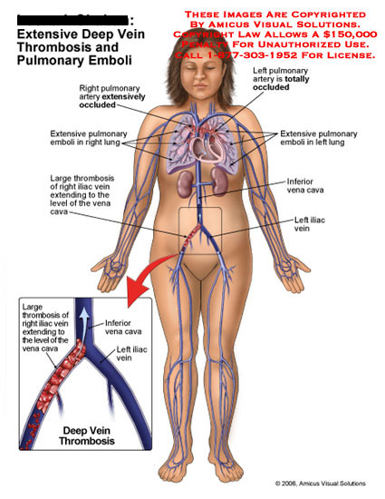 Medical diagrams and resources regarding Thrombosis in right iliac vein and pulmonary vessels occluded..