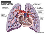 Compromised lungs with occlusion in pulmonary artery.