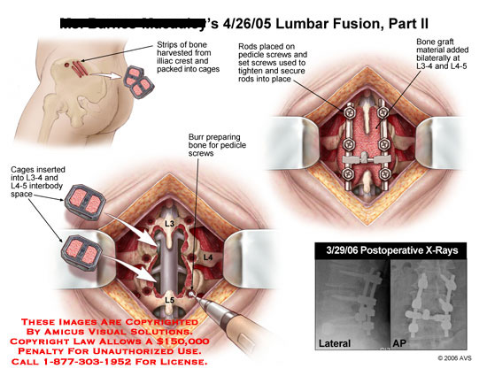 Graft harvest, pedicle screws and graft cage placement.