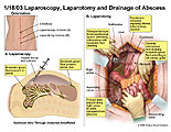 Summary of laparoscopic findings and laparotomy findings.