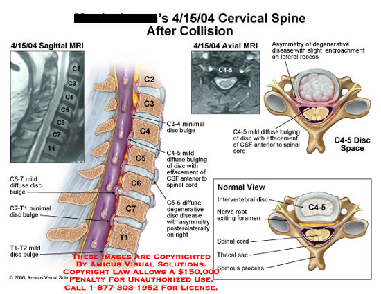 Sagittal and axial illustrations of C4-5 disc bulge.