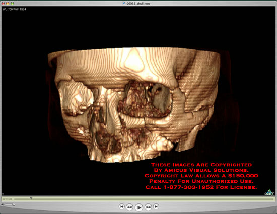 Medical diagrams and resources regarding Osirix 3D rotating skull showing tripod fractures of orbit and maxilla and zygomatic arch..