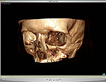Osirix 3D rotating skull showing tripod fractures of orbit and maxilla and zygomatic arch.