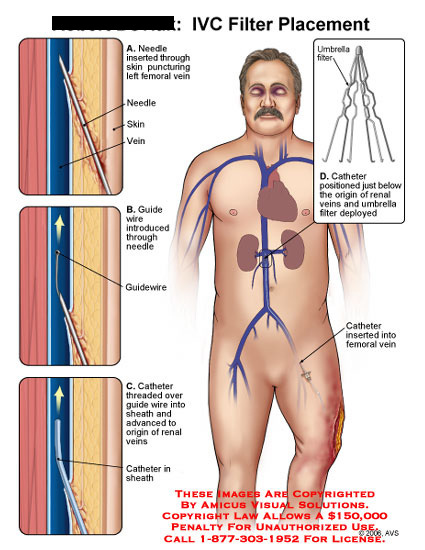 Needle insertion, guide wire and catheter placement.