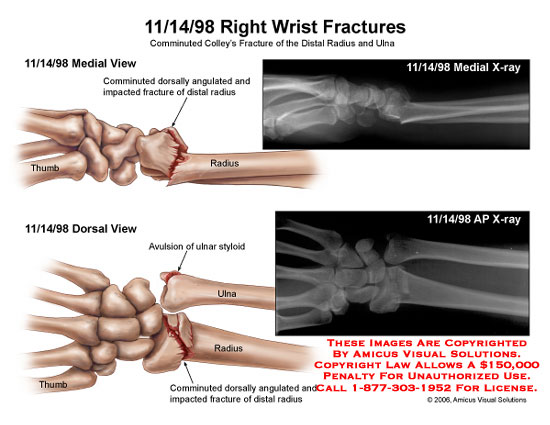 Comminuted Colley's fracture of distal radius and ulna.