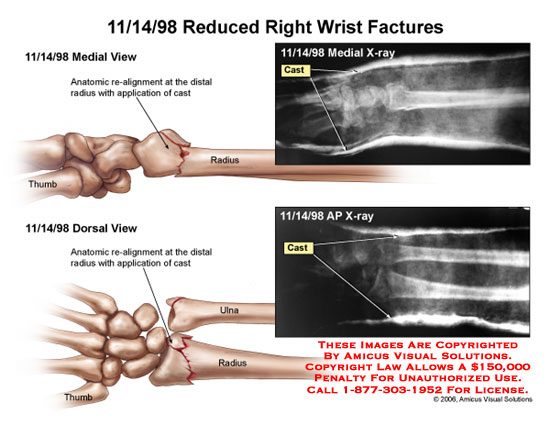 Re-alignment of distal radius and cast applied.