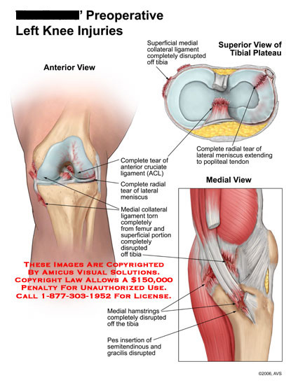 Medical diagrams and resources regarding Ligament tears, meniscal tear, and tendon disruptions..