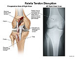 X-ray illustration of fractured patella and torn tendon.