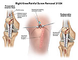 Illustration of amicus,surgery,knee,removal,painful,screw,ethibond,suture,screwdriver,scar,knot,removed,remove