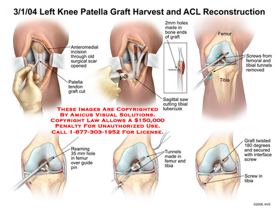 Patella tendon excised, tunnels reamed and graft inserted.