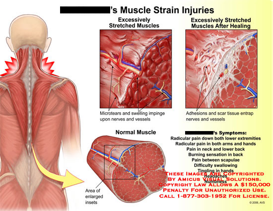 Medical diagrams and resources regarding Stretched neck and back muscle with sBill Carring and symptoms..