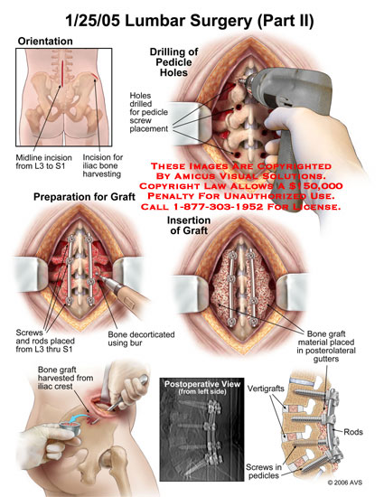 Medical diagrams and resources regarding Drilling from pedicle screws, rod and graft placement..