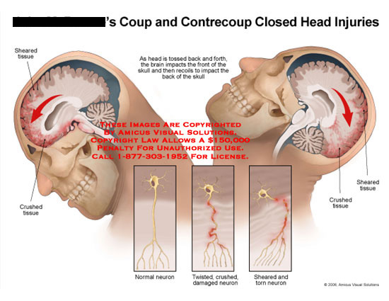 amicus,injury,coup,contrecoup,head,brain,skull,impact,recoil,sheared,shear,crushed,torn,tear,axon,neuron