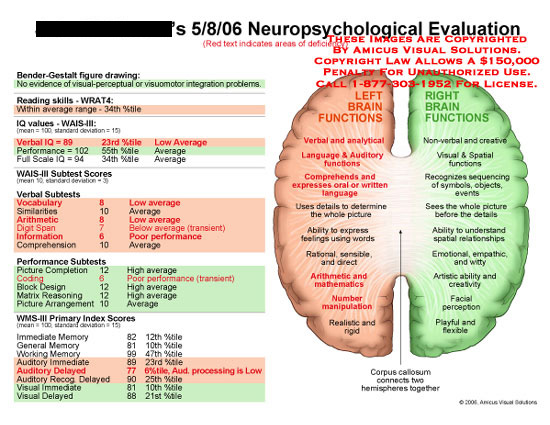 Medical diagrams and resources regarding Left brain compared to right brain functionality..