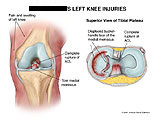 ACL rupture and torn medial meniscus.