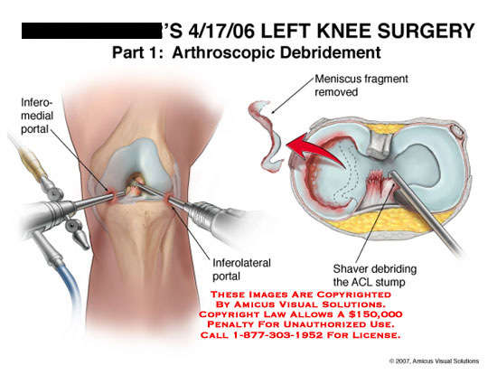 Medical diagrams and resources regarding Arthroscopic portals with meniscus removal and ACL debridement..