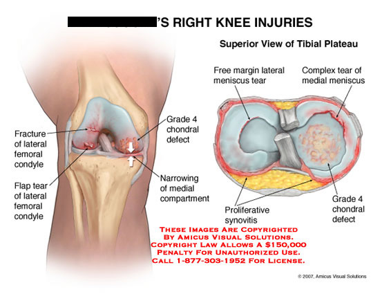 amicus,injury,knee,injuries,condyle,fracture,flap,tear,chondral,defect,meniscus,synovitis