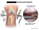 Arthroscopic debridement of medial meniscus tear,