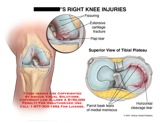Cartilage fractures and medial meniscal tears.