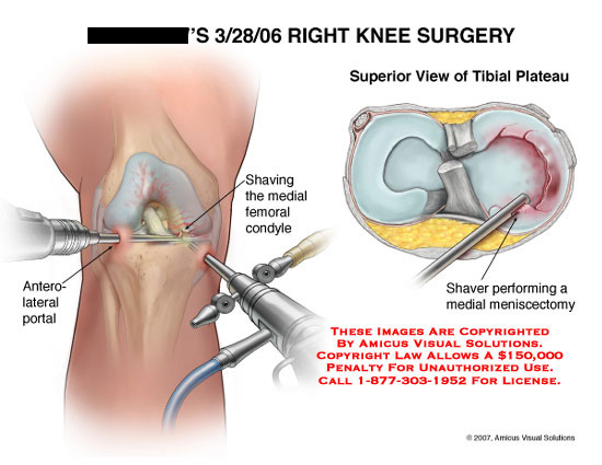 Medical diagrams and resources regarding Arthroscopic shaver performing medial meniscectomy..